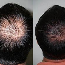 hårtransplantation tyrkiet erfaringer