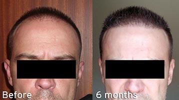 hårtransplantation pris tyrkiet